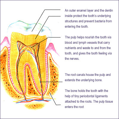 root canal infection pulp